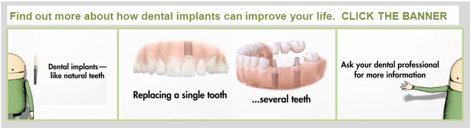 dental implants,stroud