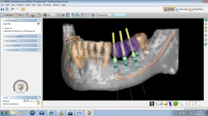 Dr Colin Neil dental implant simplant facilitate mandible example