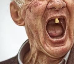 senior gentleman 1 upper tooth remaining