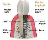 tooth vs dental implant comparison