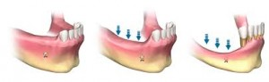 bone loss after tooth loss mandible