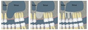 sinus graft diagram