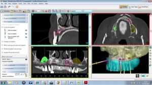Guided surgery Simplant Facilitate example image
