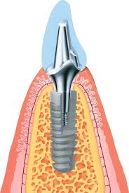 Ankylos dental implant diagram