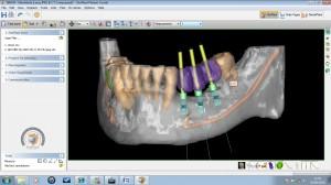 Dr Colin Neil dental implant simplant facilitate mandible example
