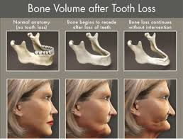 bone loss after tooth loss