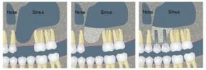 sinus graft diagram